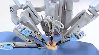 Robot Surgeons are the Future of Medicine