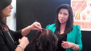 Hair Loss Natural Treatments with Microneedle Therapy