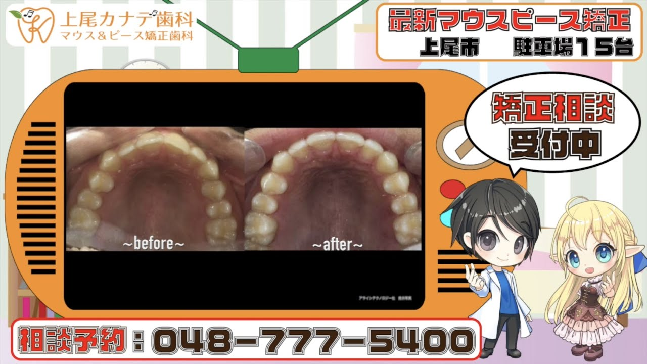 上尾市の歯医者が紹介する最新マウスピース矯正・パート136   上尾カナデ歯科・インビザライン