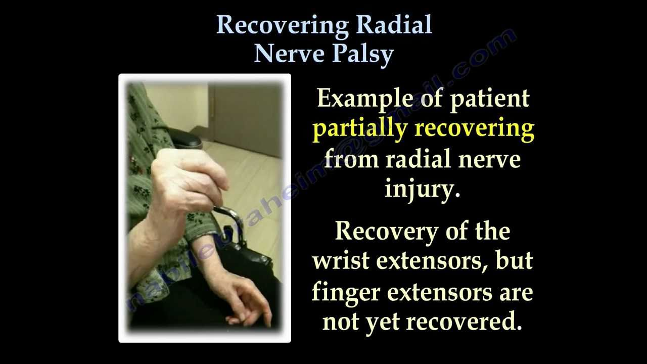 Radial Nerve Palsy ,Recovering . Part II- Everything You ...
