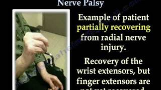 Radial Nerve Palsy ,Recovering . Part II...