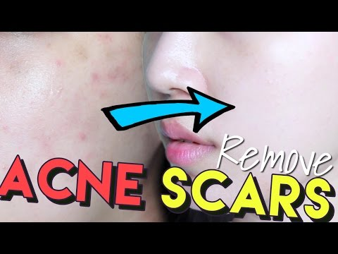 How To Get Rid of Acne Scars & Hyperpigmentation • Get Brighter Skin!