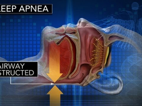 Sleep apnea increases risk of heart attack, study finds