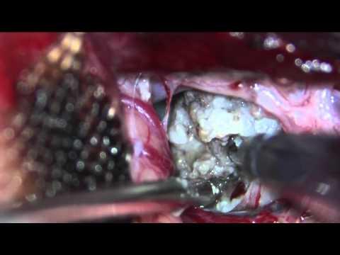 Resection of Foramen Magnum Meningioma (cureus)