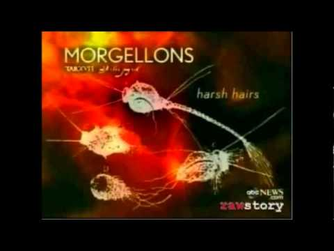 Morgellons Diesease - How to remove fungus