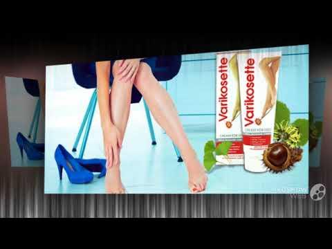 почему чешутся ноги при варикозе