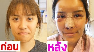 45,000 DOLLAR Korean Plastic Surgery!! [EP. 2]