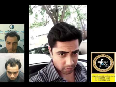 Fine FUE hair transplant mumbai india; www.facevalueclinic.com