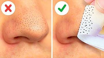 빠르고 쉽게 블랙헤드 제거하는 20가지 방법    얼굴 마스크 팩, 천연 미용 팁