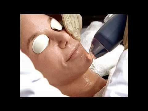 Watson Clinic - Fraxel Laser Skin Treatment
