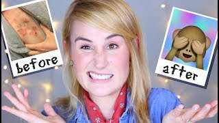 OTEZLA BEFORE + AFTER | Psoriasis Health Update