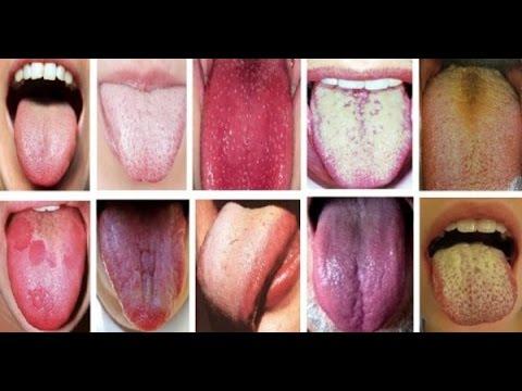 Болит горло налет на языке желтый налет