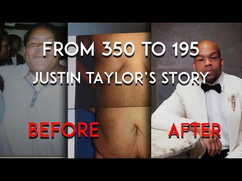 Weight-loss Transformation | 340lbs to 195lbs | Justin Taylor's Story