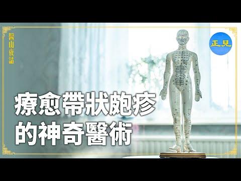 """《医山夜话》系列视频:疗愈""""带状疱疹""""的神奇医术"""