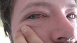 Really bad conjunctivitis (pink eye)