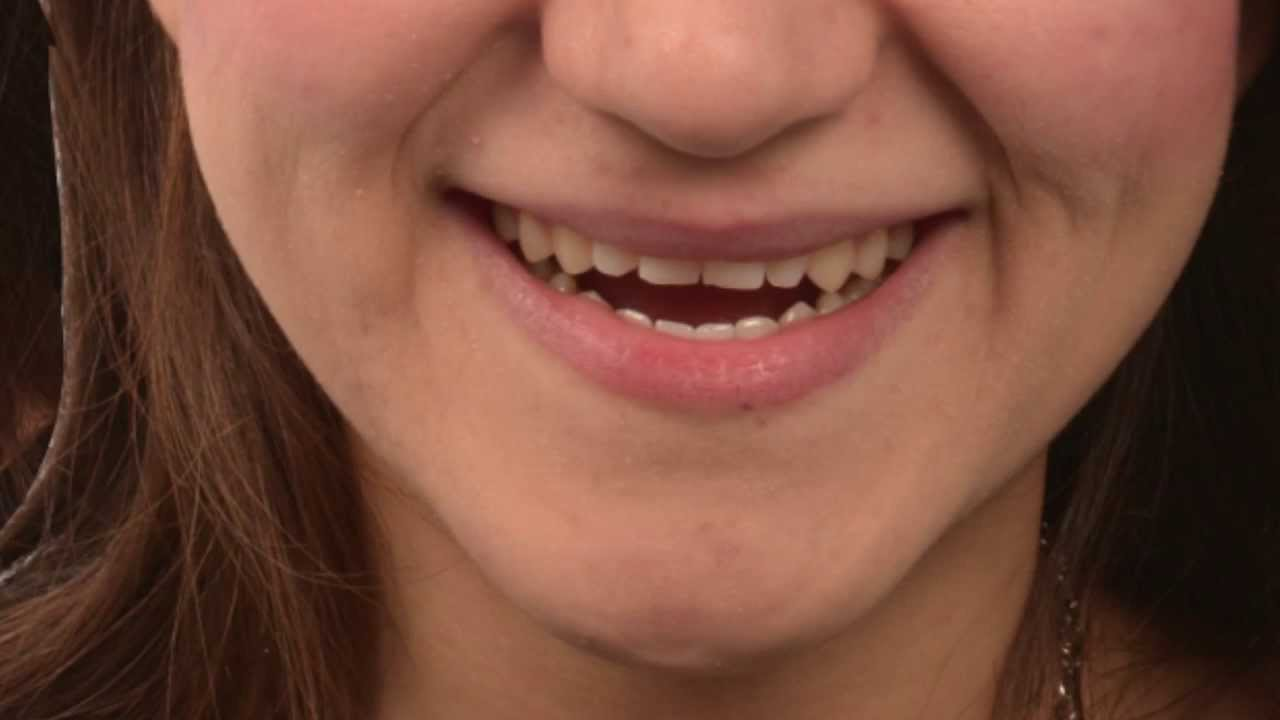 Gülüş Estetiği: Gülüş Tasarımı