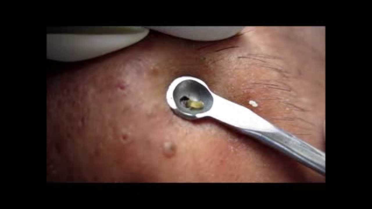Comedone Extraction With Finger Nails - YouTube