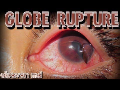 Cleavon MD - Globe Rupture - YouTube