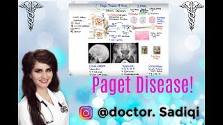 Paget Disease Of Bone Explained Under 5 Minutes!!!