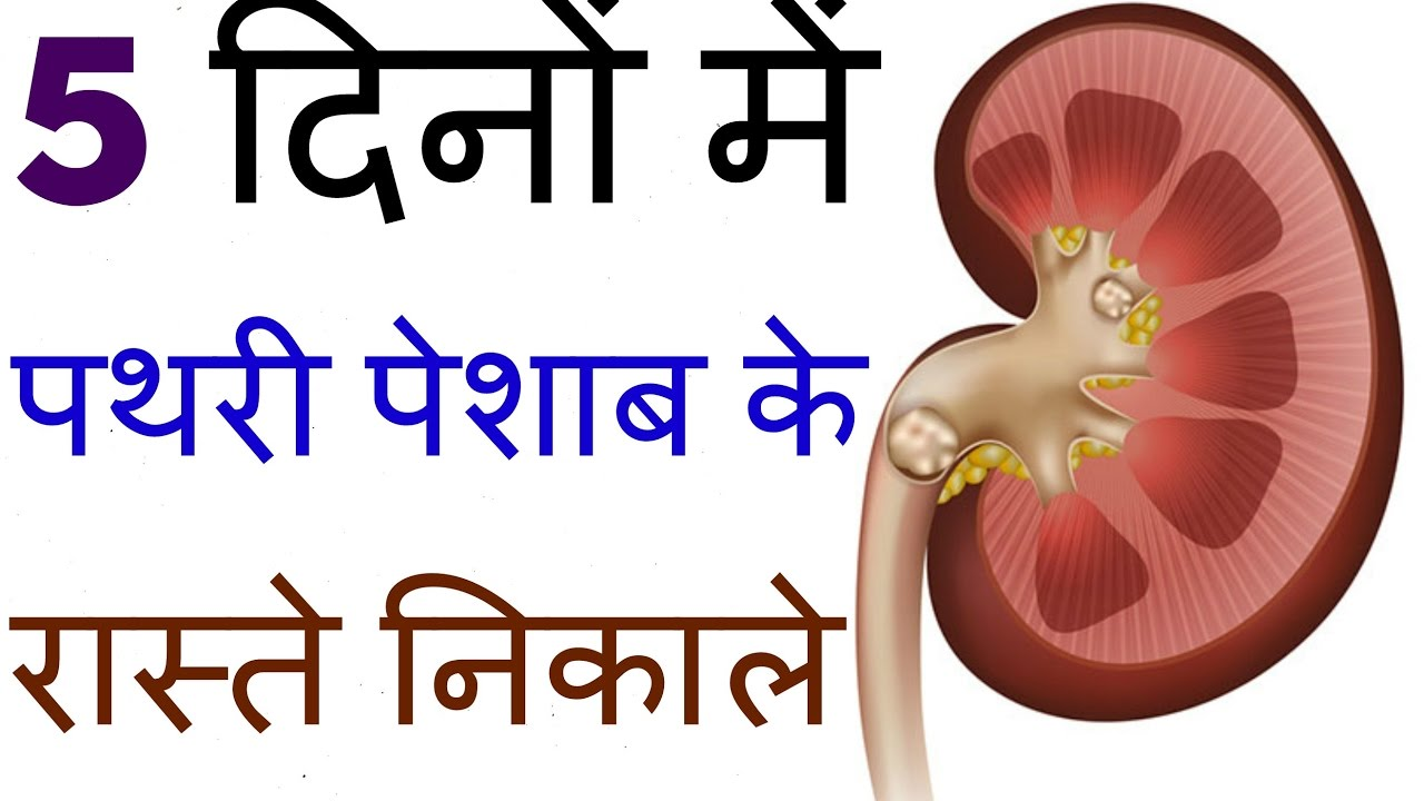 kidney stone treatment in hindi ||home remedies for kidney stones, Human Body