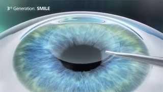 Relex SMILE versus LASIK versus PRK en LASEK