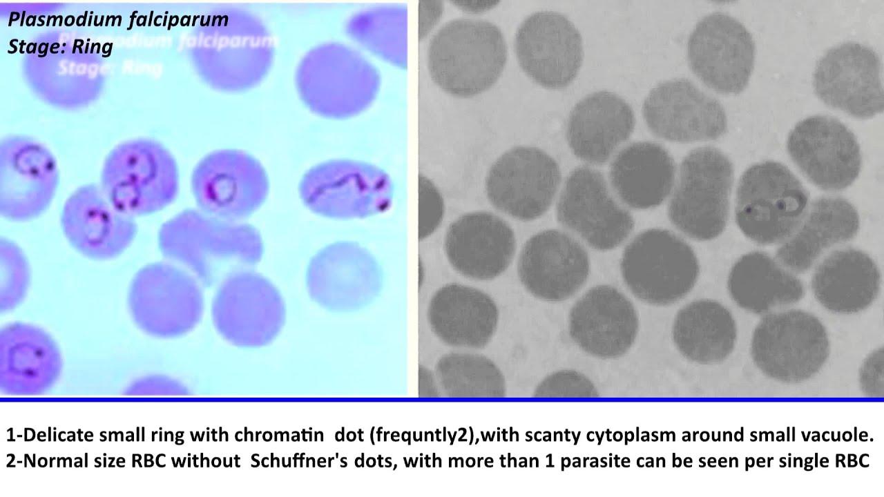 Malaria Falciparum Ring Stage