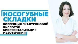 Коррекция носогубных складок в Ростове-на-Дону #коррекцияносогубныхскладок(, 2018-06-24T14:48:12.000Z)