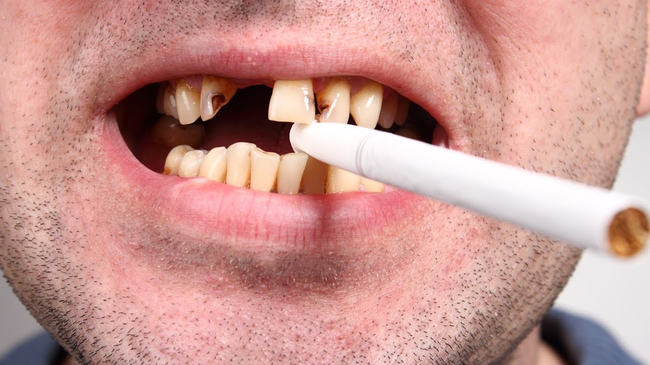 how to stop bleeding gums from a pulled tooth