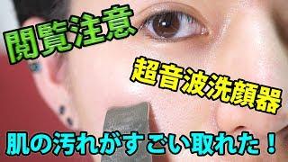 【閲覧注意】超音波の洗顔器を使ったら汚れがめっちゃ取れたww