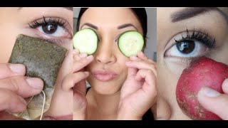 HOW-TO Get Rid of Dark/Bags Eye Circles (Home Remedies!)