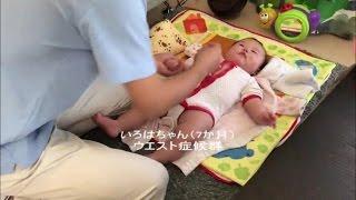 WEST症候群(点頭てんかん)7か月  小児はりで改善 ささないはり 鍼灸みやび の 小児はり thumbnail