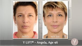 Y LIFT ® 2014 - Angela (Spanish w/Subtitles) | Instant, Non Surgical Facelift