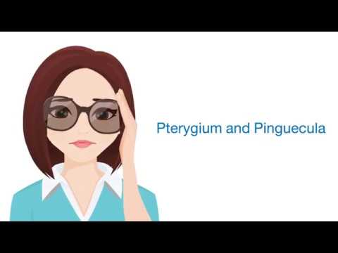 Ep.3 Pterygium and Pinguecula