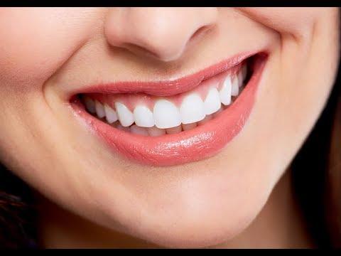 исправление кривых зубов