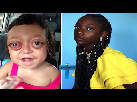 Top 10 Truly Unbelievable UNUSUAL Kids In The World With Amazing Features In The World
