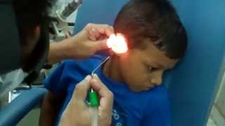 Ear Wax Cleaning By Suction In A Child - Dr Paulose FRCS (ENT)