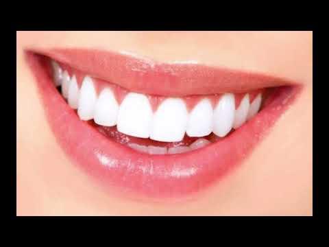 19 Cara Memutihkan Gigi Secara Alami Dengan Cepat Terbukti 100
