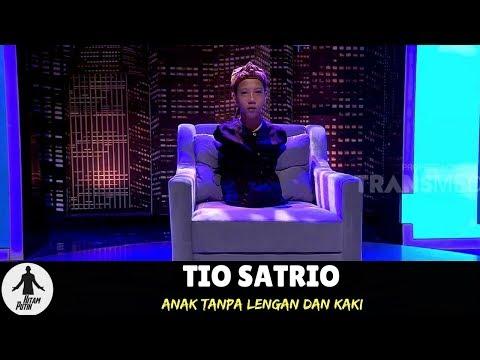 Kisah TIO SATRIO, Anak Tanpa Lengan dan Kaki | HITAM PUTIH (11/06/18) 1-3