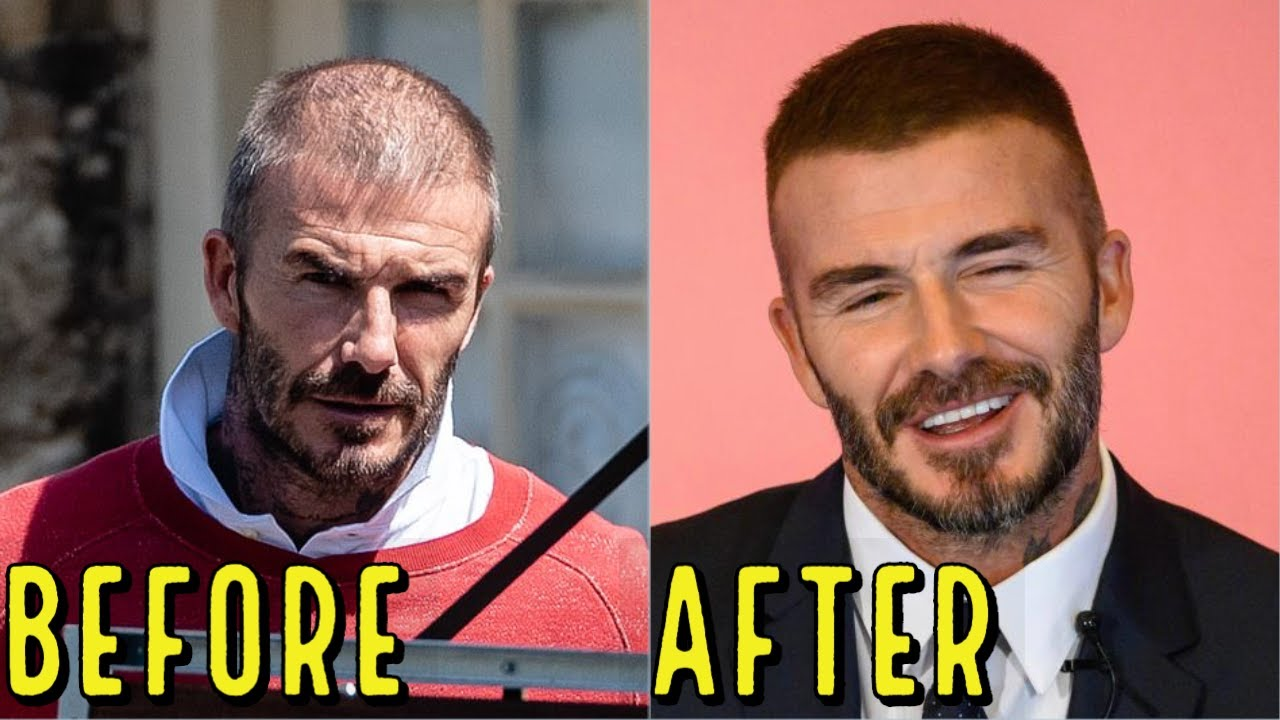 DAVID BECKHAM'S AMAZING HAIR LOSS TRANSFORMATION! DID HE GET A HAIR TRANSPLANT?