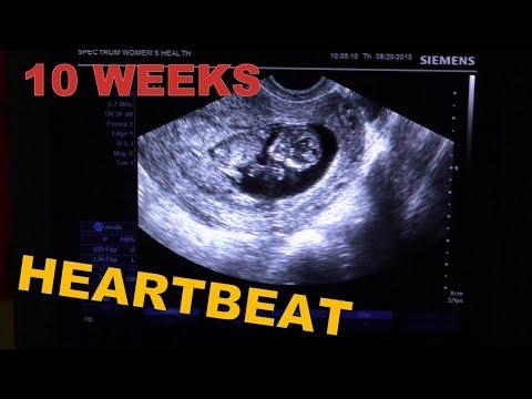 ❤️-10-weeks-pregnant-ultrasound-+-heartbeat❤️-early-pregnancy-usg--baby-boy!