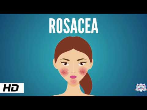 rosacea,-causes,-signs-and-symptoms,-diagnosis-and-treatment.