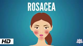Rosacea, Causes, Signs and Symptoms, Diagnosis and Treatment.