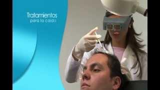 Tratamientos Efectivos para la Caida del Cabello Alopecia o Calvicie