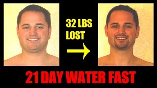 Water Fasting - Day 21 of 21 - Breaking the Fast - Pictures Before After - 32 lbs lost