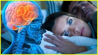 SIDE Effects of Lack of SLEEP - YOU SHOULD WATCH