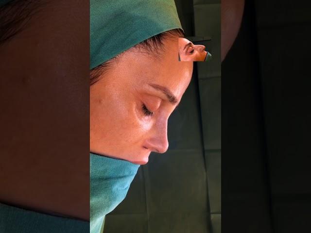 Live Closed Atraumatic Rhinoplasty