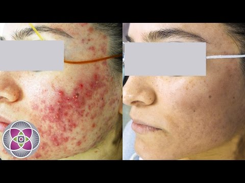 hqdefault - Free Laser Acne Removal