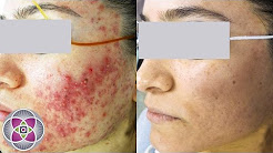 hqdefault - Laser Treatment For Red Acne Scars