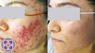 Remedy How scars home to rid acne of get