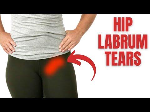 Hip Labral Tear - Treatment & Therapy Huntington Beach, Orange County